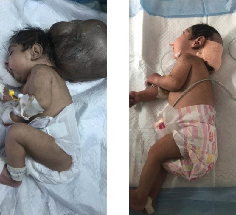 Enterré vivant par son père, un bébé à deux têtes est sauvé deux fois