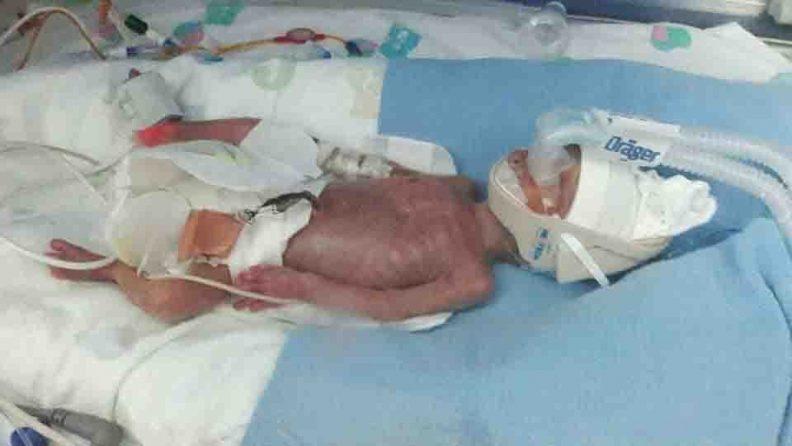 Photo de River Willis à la naissance, avec sa peau transparente